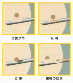 マンモトーム生検イメージ3